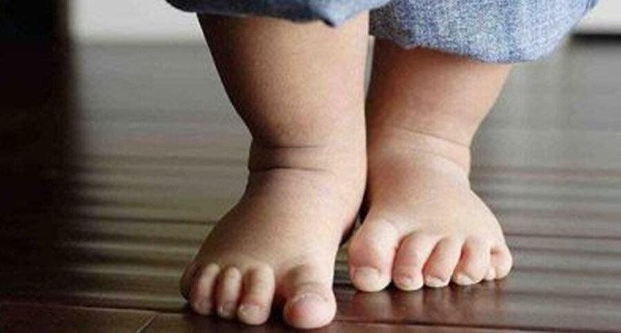 چاقی موجب ایجاد پاهای پرانتزی در بچه ها می گردد